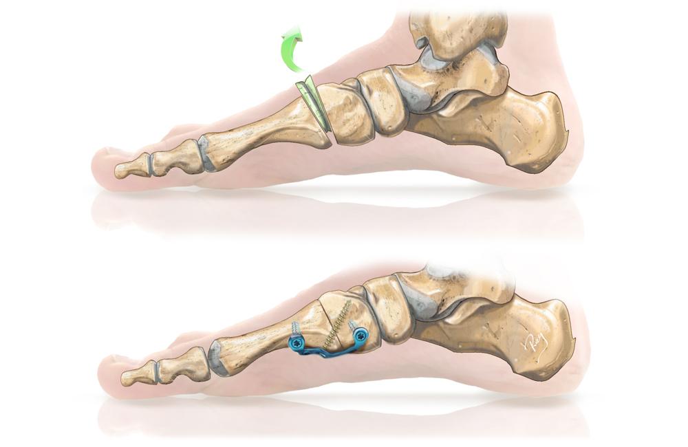 Hallux valgus, Arthrodèse cunéo-métatarsienne avec excision articulaire et plaque plantaire