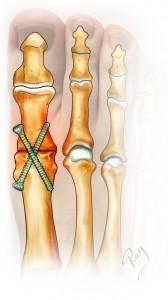 Arthrodèse de l'hallux par vis pour arthrose