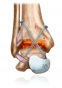Arthrodesis (blocking) of the ankle using screws