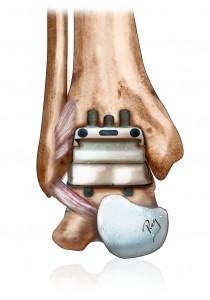 Prothèse de la cheville pour arthrose