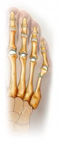 Ostéotomie de fermeture percutanée – excision d'un fragment osseux en coin