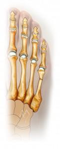 Fermeture de l'ostétomie, réalignant le métatarsien et l'orteil