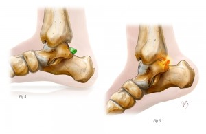 Conflit articulaire cheville postérieur