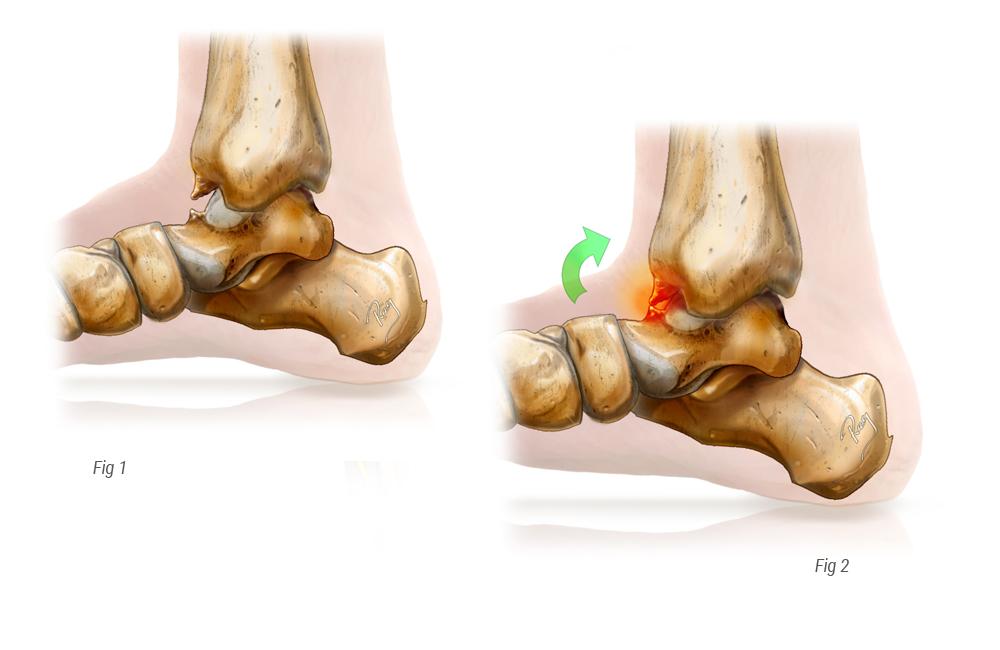douleur à la cheville - conflit articulaire cheville