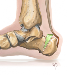 haglund, Ostéotomies de Zadek