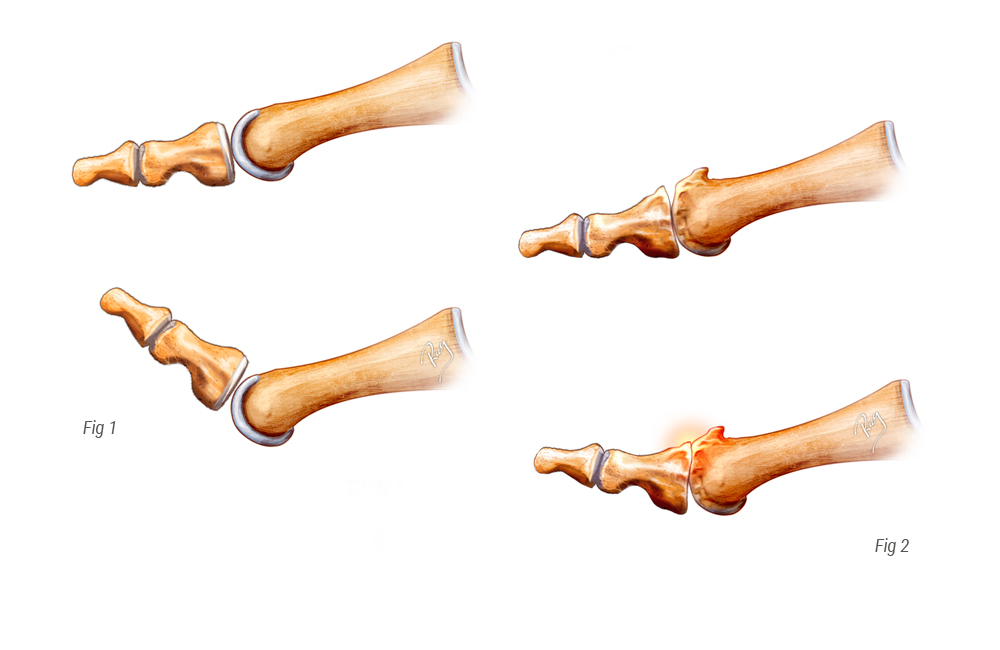 Hallux normal vs Hallux rigidus