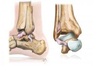 Cheville instable, ligaments détendus et incompétents