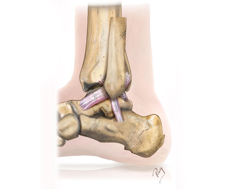 Ligaments externes de la cheville