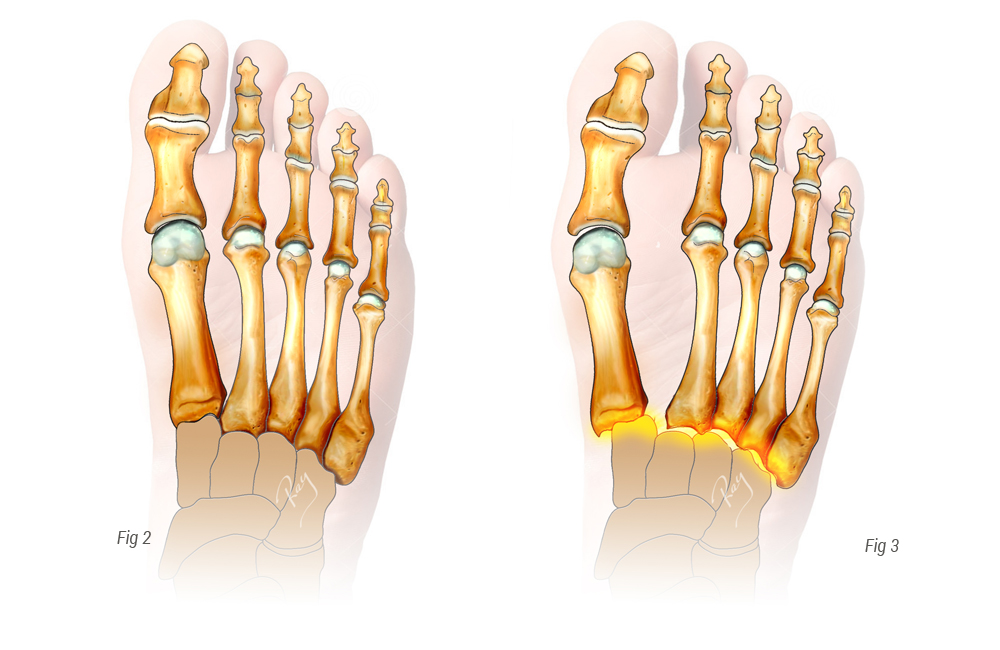 pied normal vs Luxation traumatique du Lisfranc