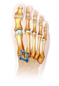 Lisfranc injuries