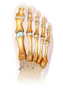 Acute arthrodesis or stabilisation of Lisfranc by screws