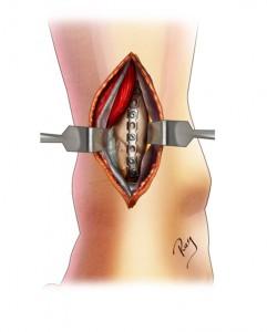 chirurgie ouverte - implantation d'une plaque