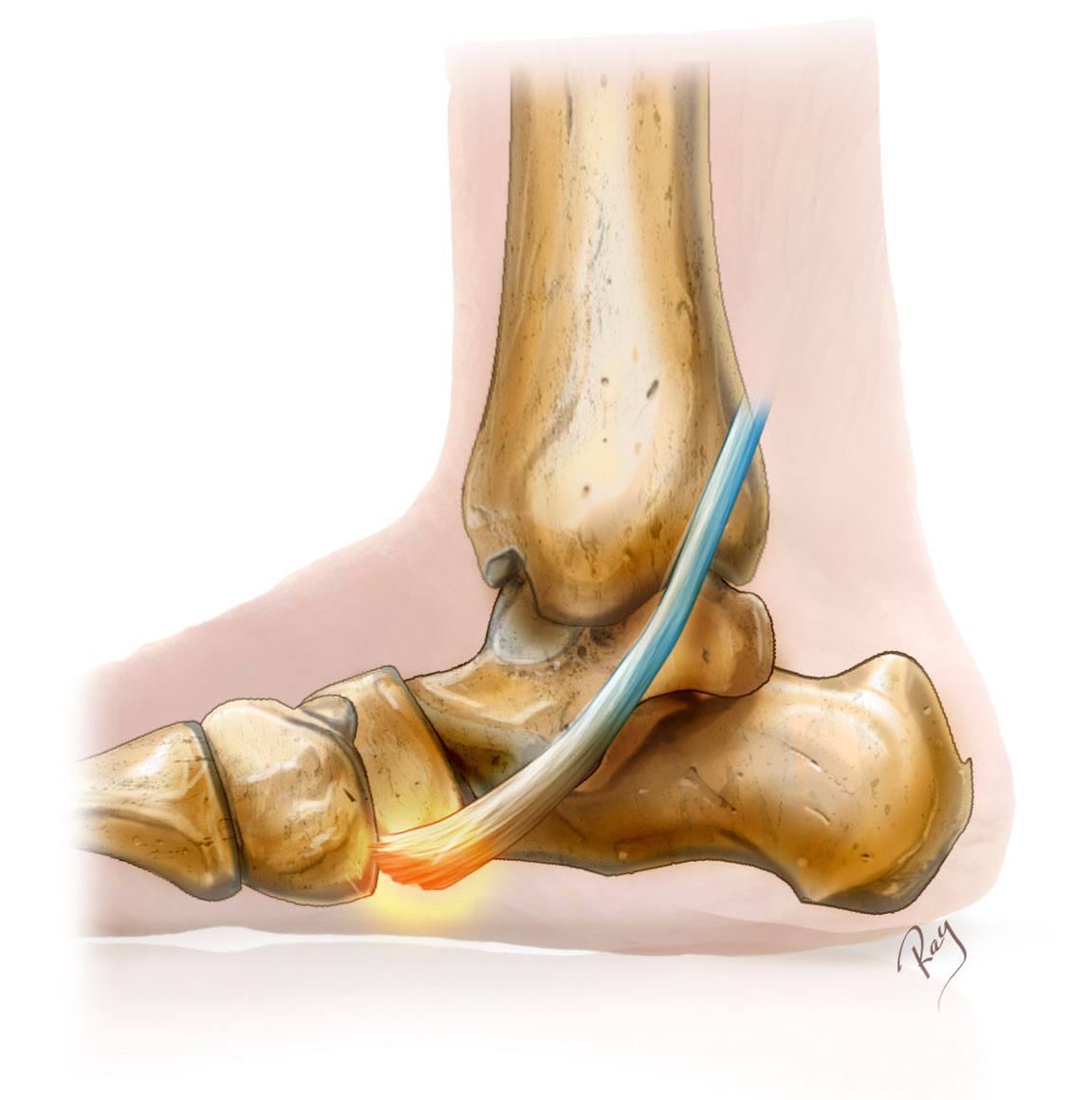 Pied plat - tendon tibial postérieur (Tendinopathie)