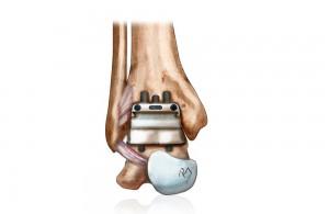 prothèse de cheville