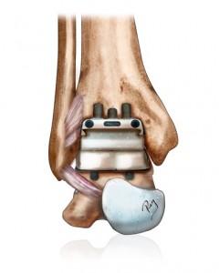 Prothèse implantée dans la cheville