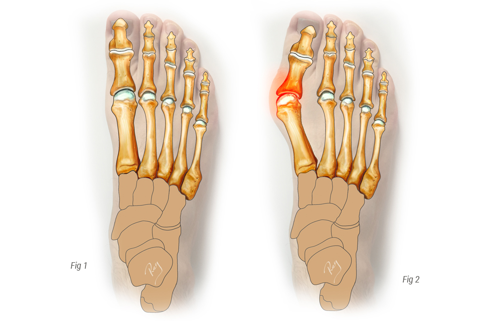 Pied normal vs Hallux Valgus - Oignon pied