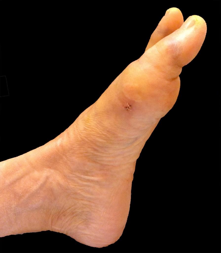 Taille de la cicatrice lors d'une correction d'un hallux valgus percutané