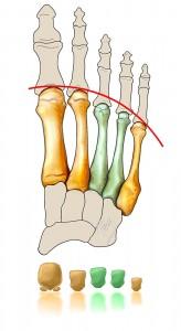 métatarsalgies - insuffisance des rayons latéraux